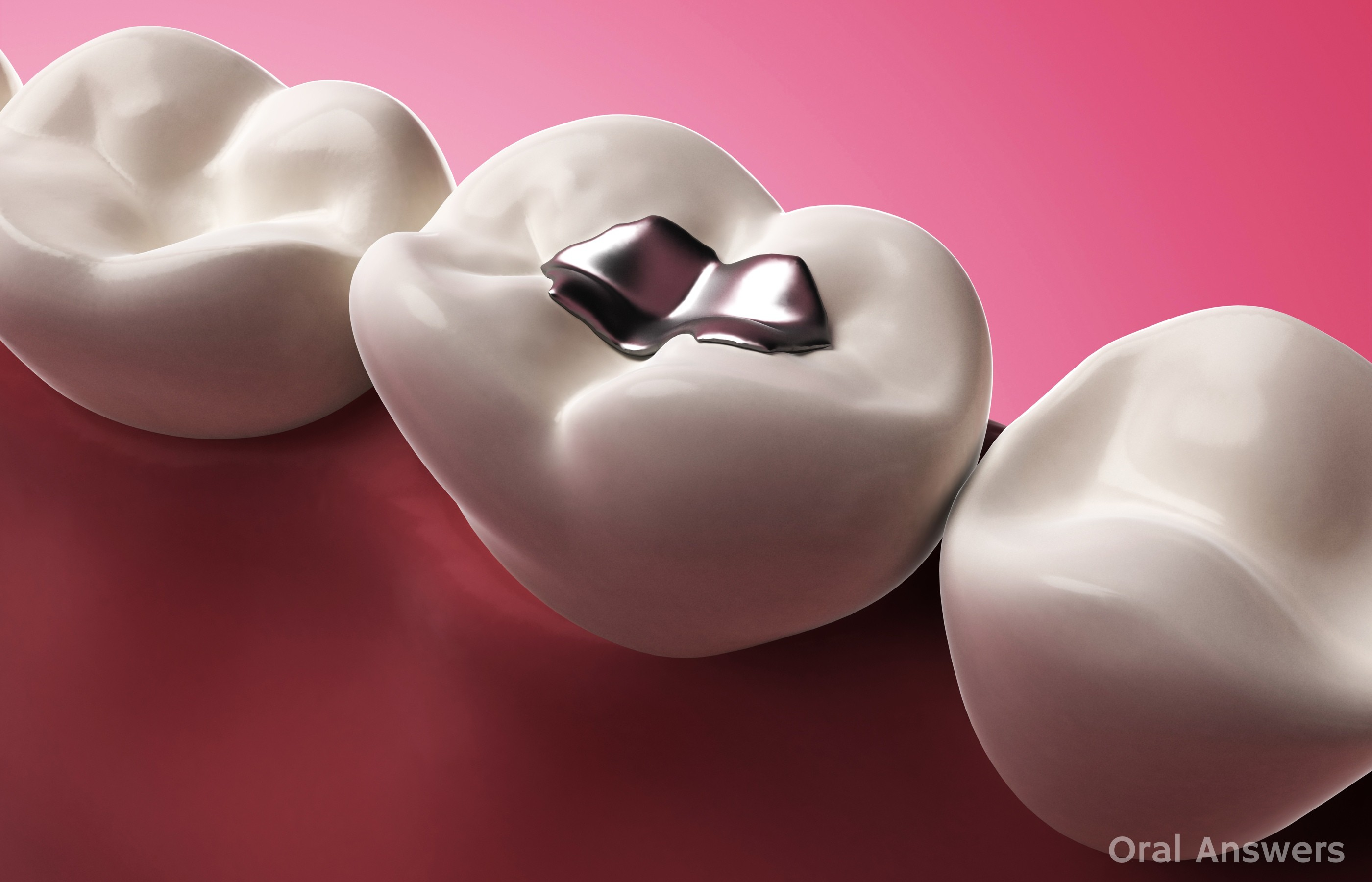 graphic rendering of a row of teeth; one has a dental amalgam filling